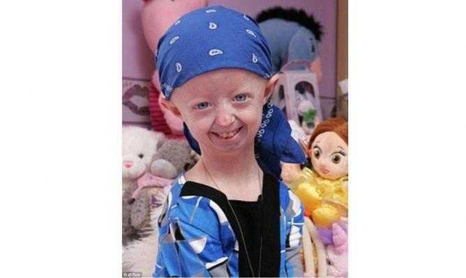 Gadis Berwajah 'Tua' Wafat dalam Usia 17 Tahun