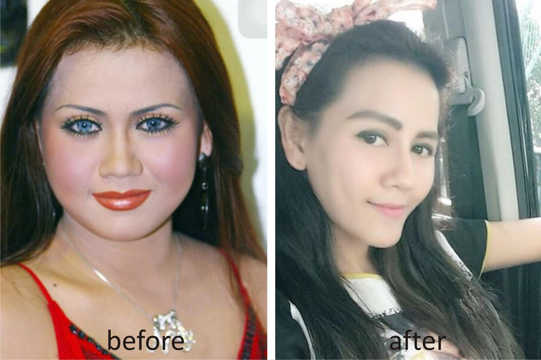 Photo of Nita Thalia Akui Soal Bagian Wajahnya Yang Dioplas